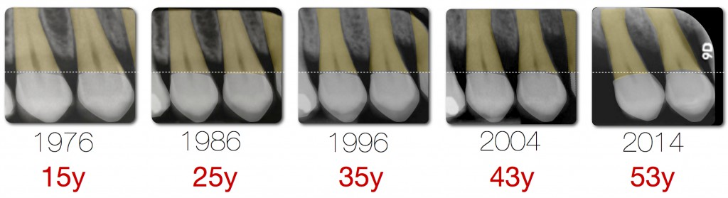 periodontitis bone loss.003.003